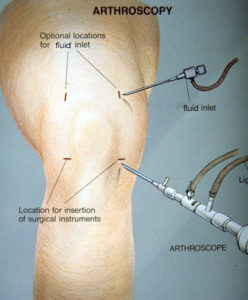 The Knee Joint Sports Medicine Injuries Dr William J